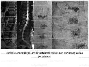 7(vertebroplastica)